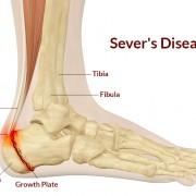 Sever-Disease