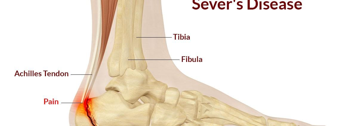 Sever S Disease Pinnacle Physio